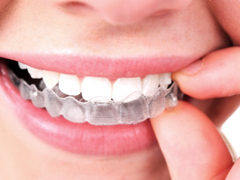 clinica dental parla invisalign ortodoncia invisible