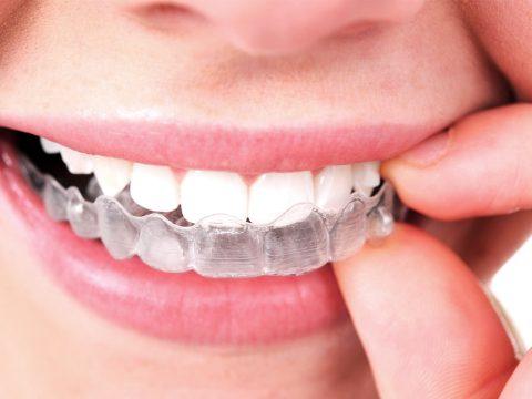 clinica dental parla invisalign ortodoncia invisible