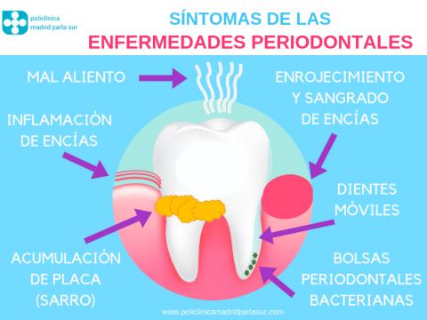 sintomas enfermedades periodontales, infografia