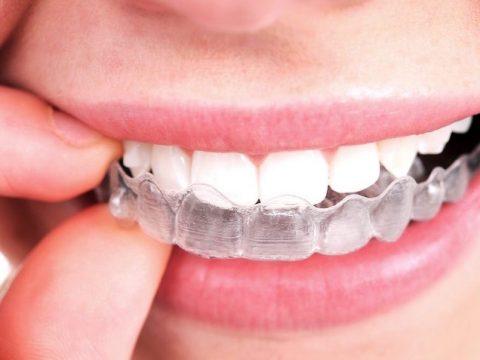 Que es invisalign, ventajas invisalign, dentista parla, imagen sistema invisalign